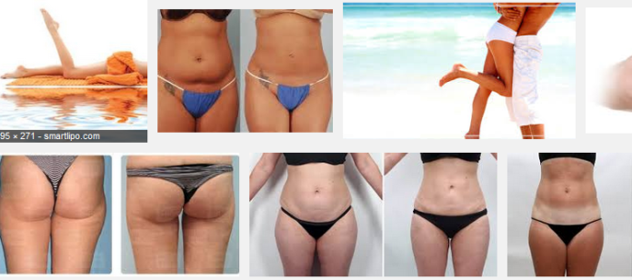 Water Lipo before and after images